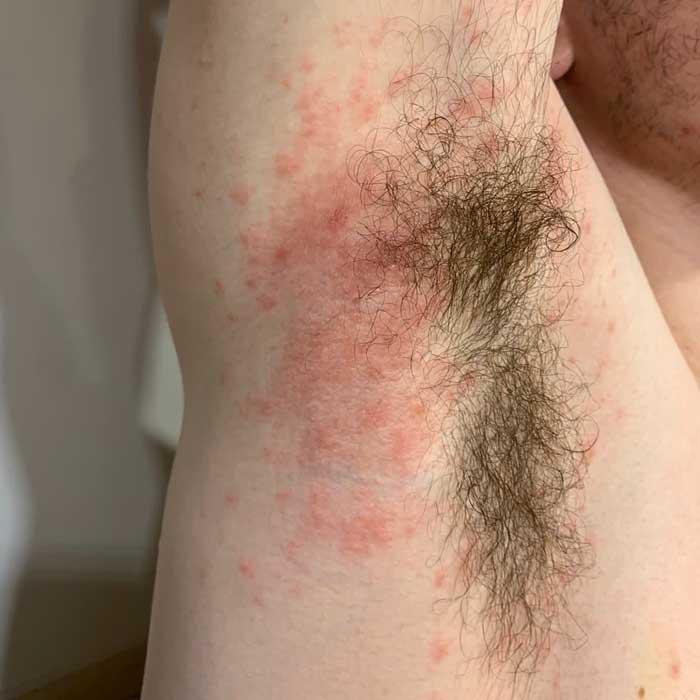 CASO 1: molestias dermatológicas curadas con homeopatía