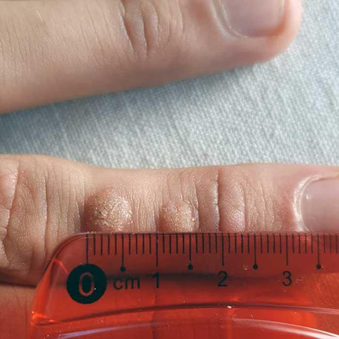 Cas 2: molèsties dermatològiques curades amb homeopatia